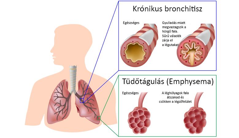 COPD-kronikus-obstruktiv-bronchitis-kialakulas-mechanizmusa