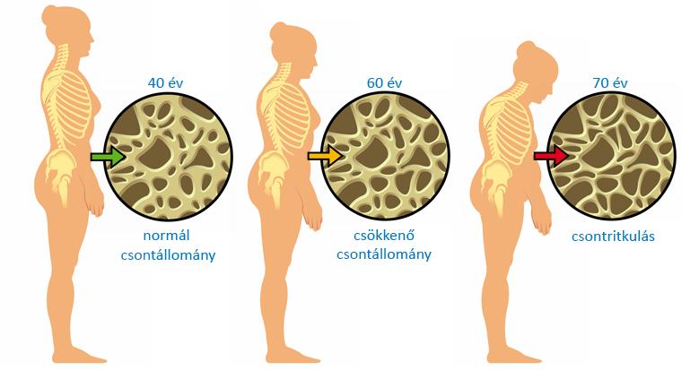 csontritkulas-kialakulas-csontszerkezete-tartás-változása