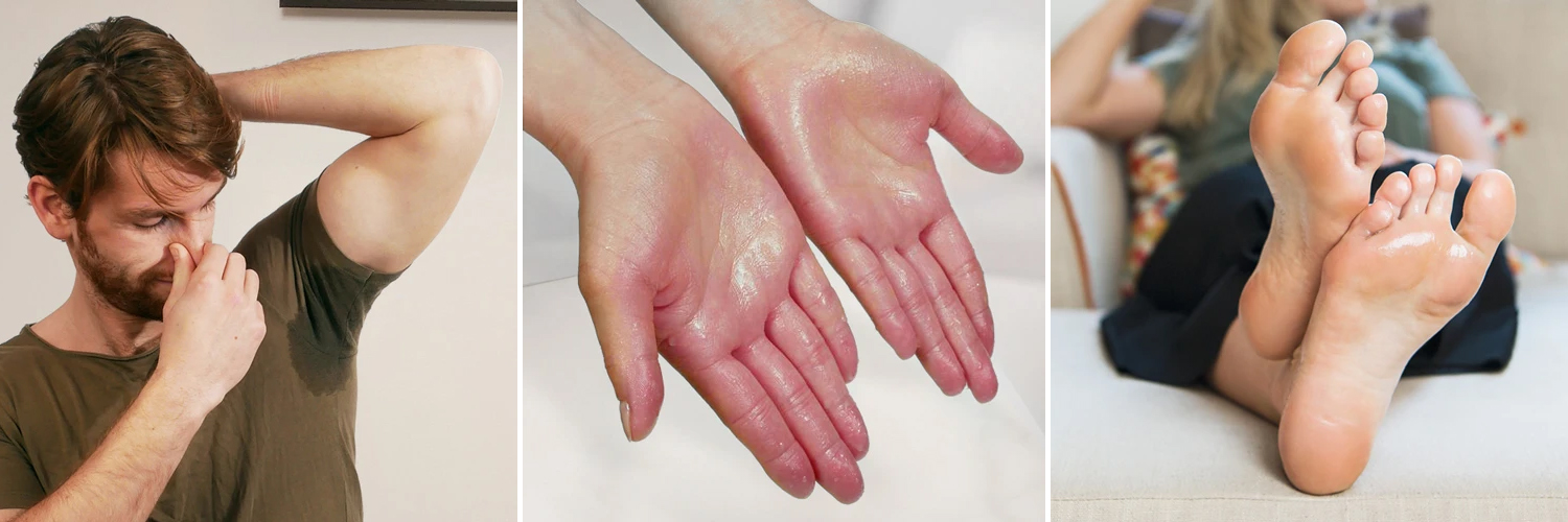 Hyperhidrosis symptoms on hand, foot and armpit