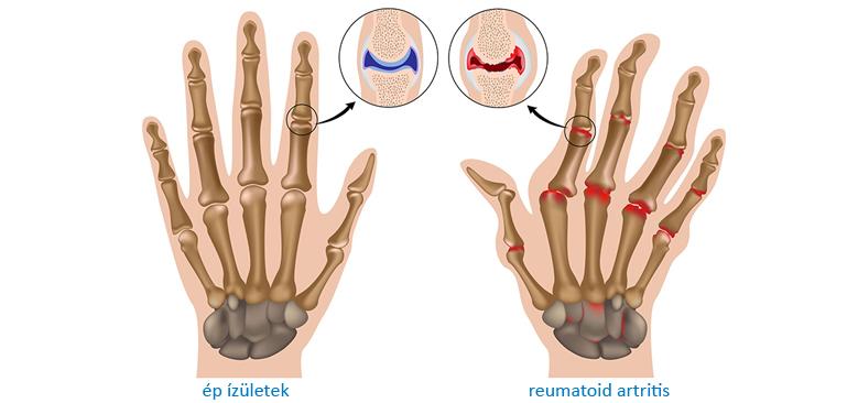 a reumatoid artritis által okozott elváltozás